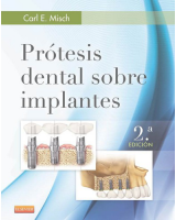 Prótesis dental sobre implantes 2 ed.