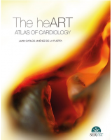 The Heart. Atlas of cardiology