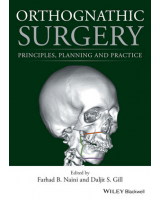 ORTHOGNATHIC SURGERY. PRINCIPLES, PLANNING AND PRACTICE