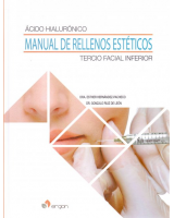 ACIDO HIALURONICO. MANUAL DE RELLENOS ESTETICOS. TERCIO FACIAL INFERIOR
