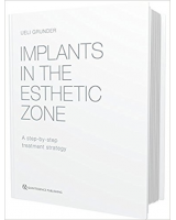 IMPLANTS IN THE ESTHETIC ZONE. A STEP-BY-STEP TREATMENT STRATEGY