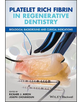 Platelet Rich Fibrin in Regenerative Dentistry. Biological Background and Clinical Indications.