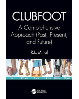 Clubfoot. A Comprehensive Approach (Past, Present, and Future)
