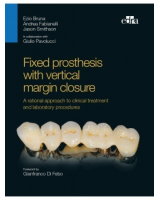 Fixed prosthesis with vertical margin closure