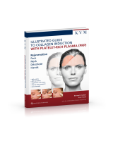 Illustrated Guided to Collagen Induction with Platelet-Rich Plasma (PRP)