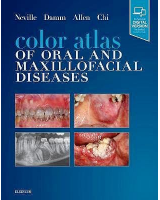 Color Atlas of Oral and Maxillofacial Diseases  (Print and Online)