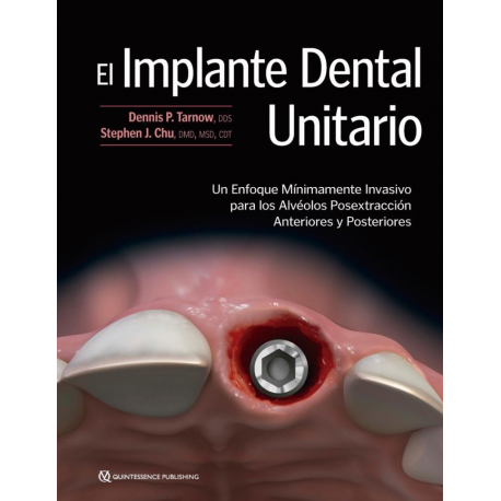 The Single-Tooth Implant A Minimally Invasive Approach for Anterior and Posterior Extraction Sockets