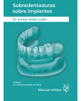 SOBREDENTADURAS SOBRE IMPLANTES: MANUAL CLÍNICO