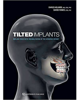 Tilted Implants: Implant-Prosthetic Rehabilitation of the Atrophic Patient
