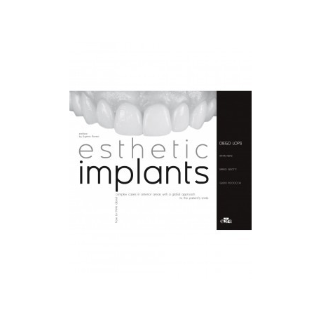Esthetic Implants: How to think about complex cases in anterior areas with a global approach to the patient smile